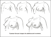 Natural Home Remedies That Help Breast Tenderness